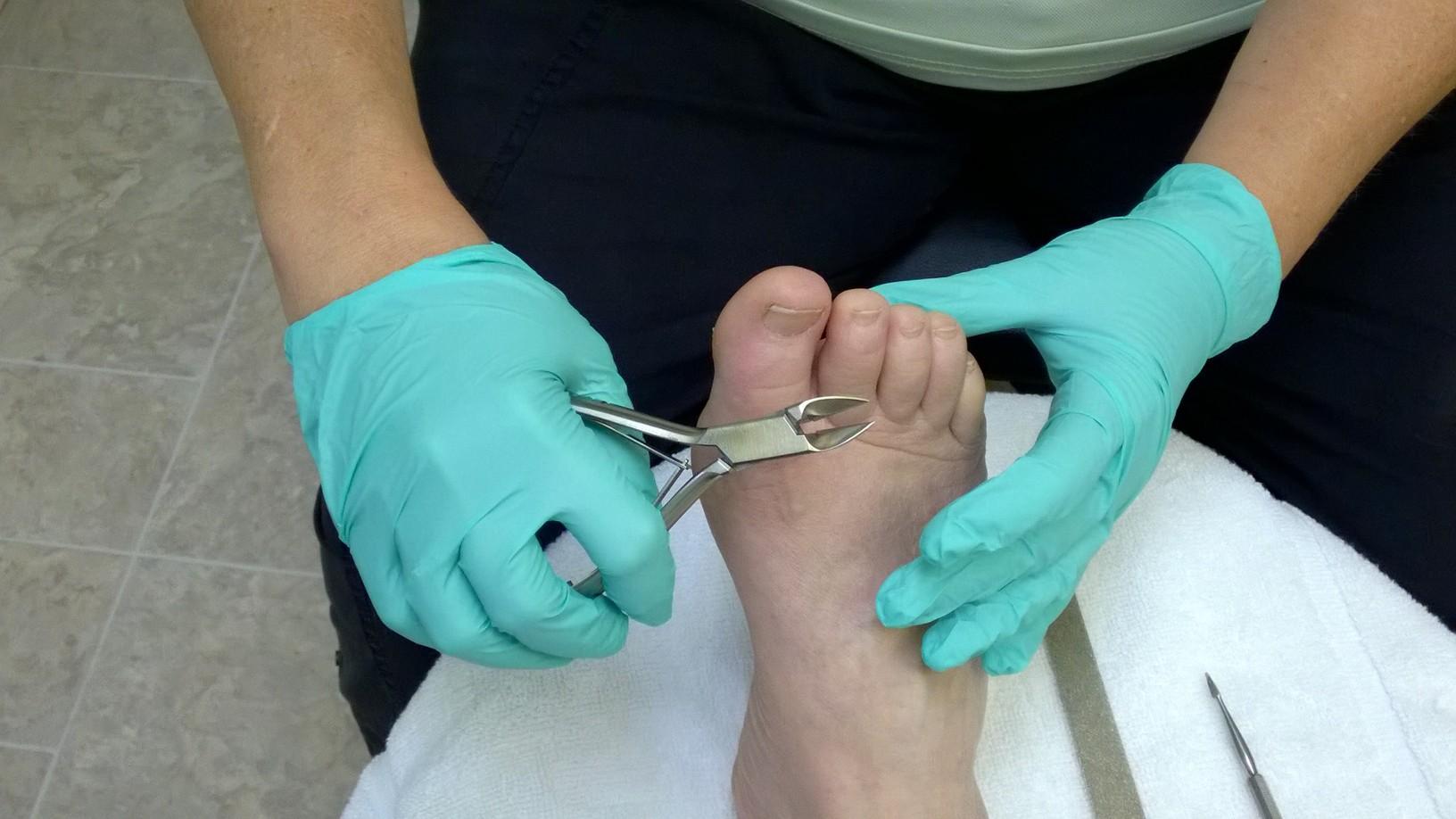 Foot care nurse at work